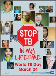 Thumbnail image of Stop TB in My Lifetime: World TB Day March 24