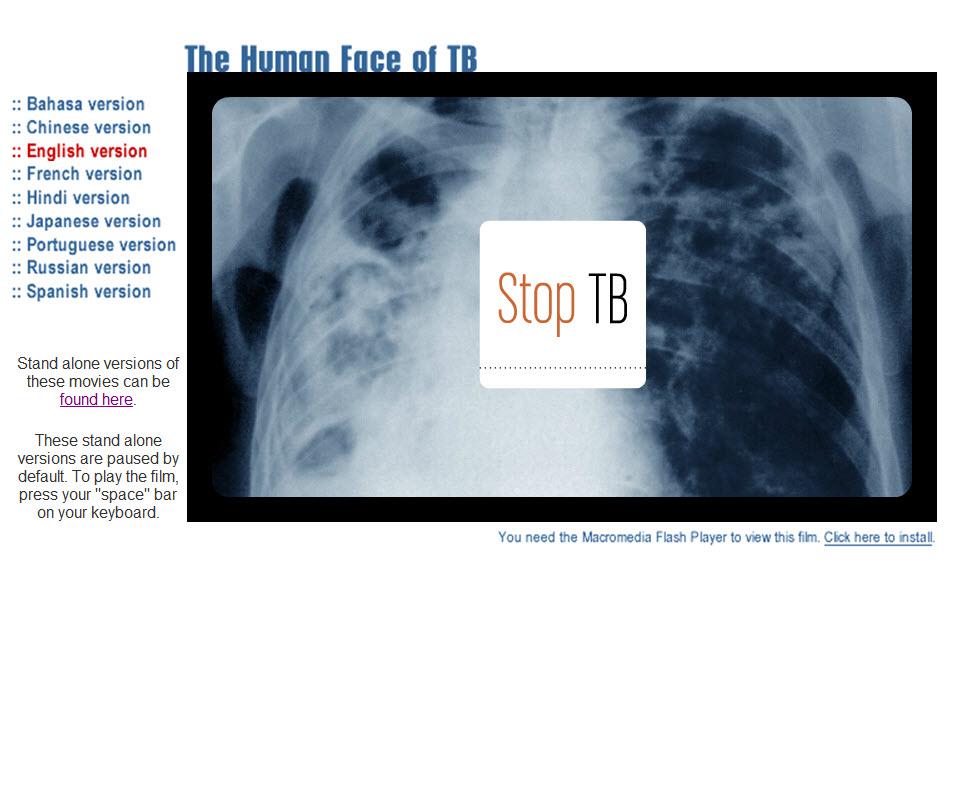 A Facial lesion … the face of Cutaneous Tuberculosis