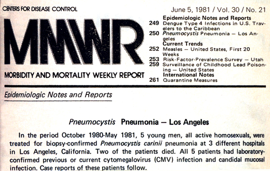 clipping from the issue of MMWR featuring the first report on what would be known as the AIDS epidemic